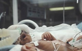 Woman gives birth to a baby with 2 heads and 3 hands in India