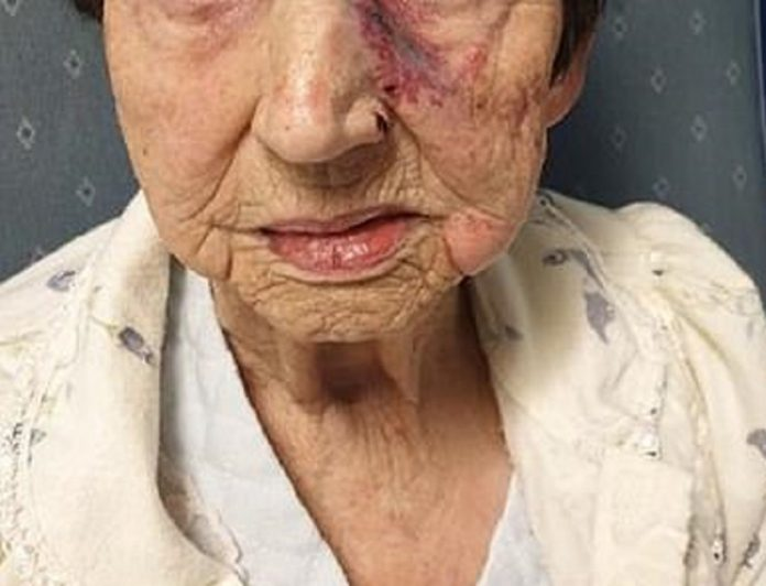 93-year-old woman left injured by burglars during house burglary