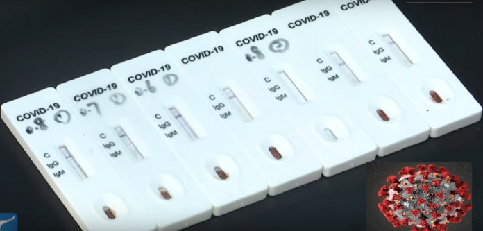 China develops rapid diagnostic TEST strips for COVID-19