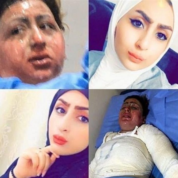 Woman, 20, Allegedly Burned By Her Cruel Husband