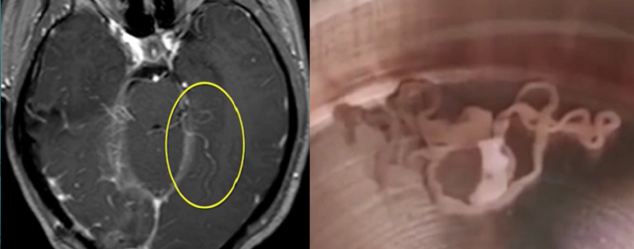 Footage Reveals Chinese Woman Has Live 6-inch Worm In Her Brain