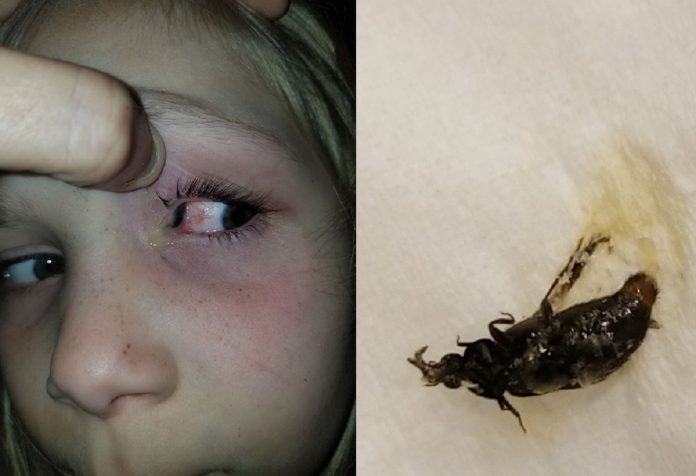 Shocking Picture Reveals Black Beetle Crawl In Girl's Eye For Nine Hours
