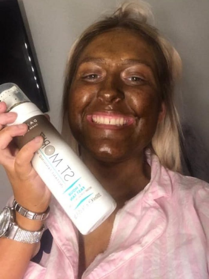 Fake Tanning Goes Wrong For NHS Call Handler Left Washing Her Face With Bleach